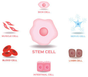 stem cell injections